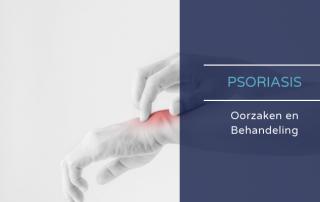 Psoriasis oorzaken en behandeling